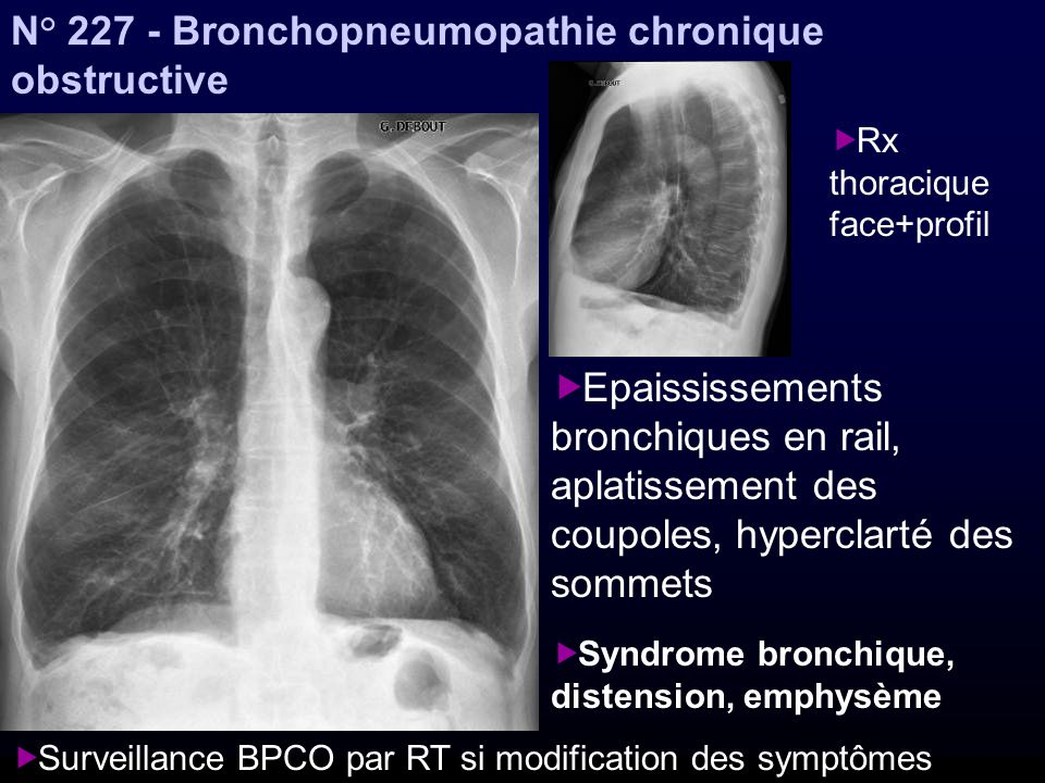 N° Bronchopneumopathie chronique obstructive