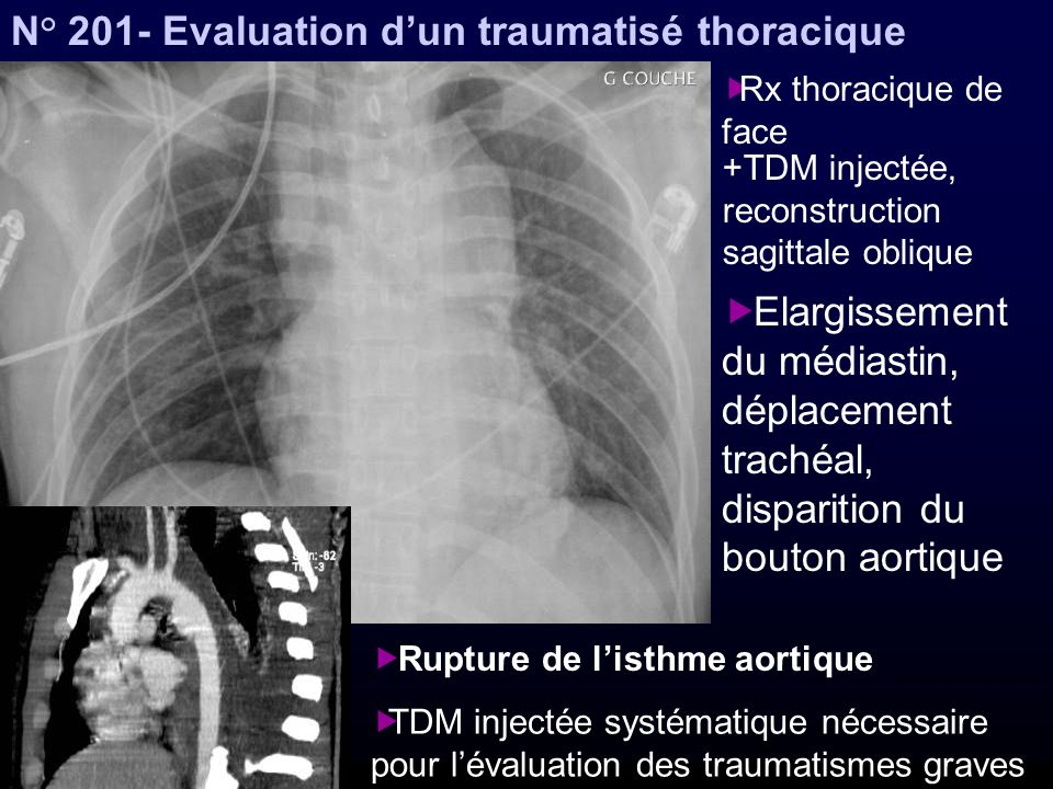 N° 201- Evaluation d'un traumatisé thoracique