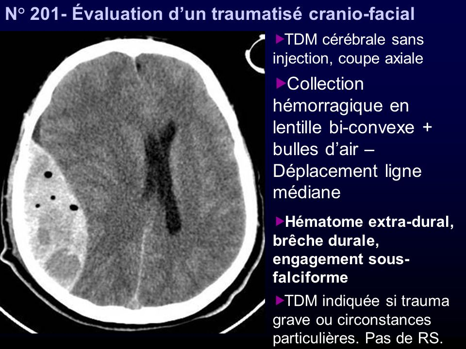 N° 201- Évaluation d'un traumatisé cranio-facial