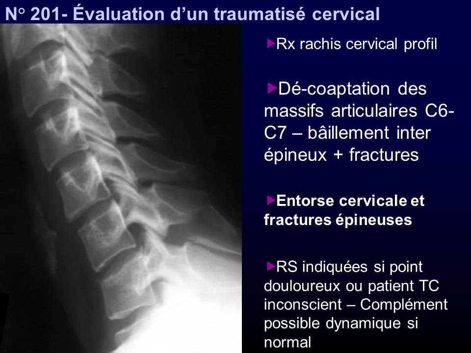 N° 201- Évaluation d'un traumatisé cervical