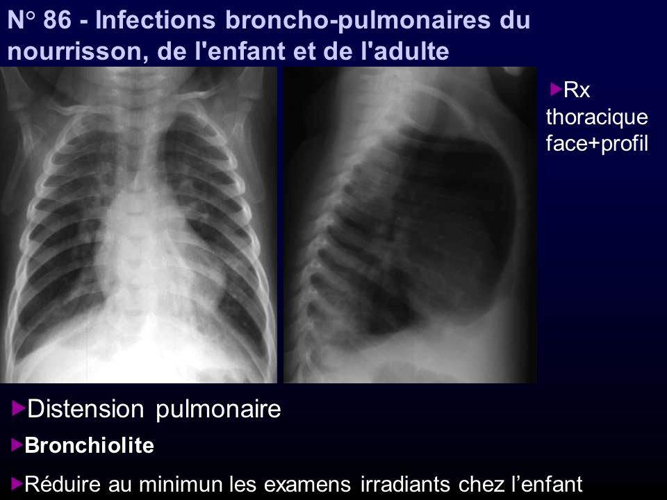 Distension pulmonaire