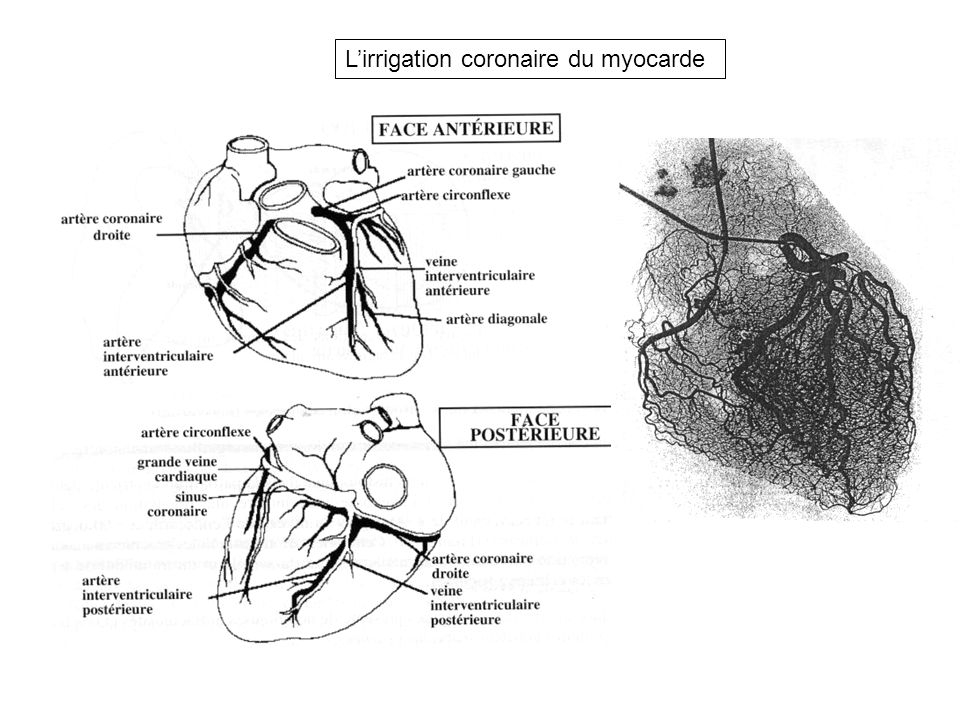 L'irrigation coronaire du myocarde
