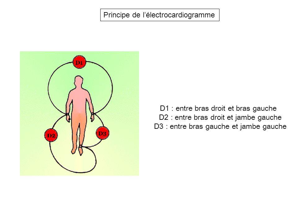 Principe de l'électrocardiogramme