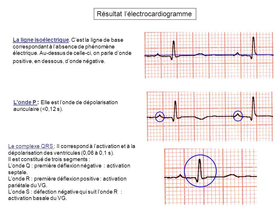 Résultat l'électrocardiogramme