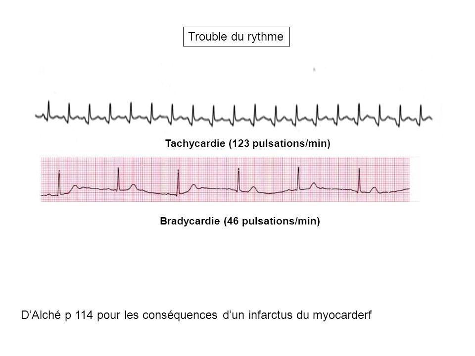 D'Alché p 114 pour les conséquences d'un infarctus du myocarderf