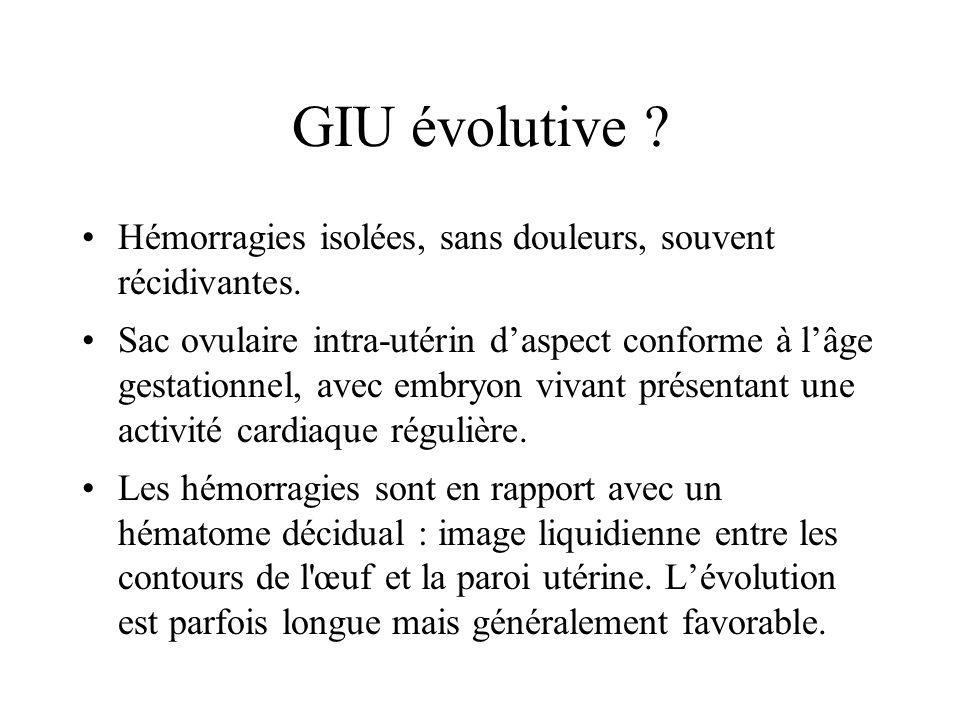 GIU évolutive Hémorragies isolées, sans douleurs, souvent récidivantes.