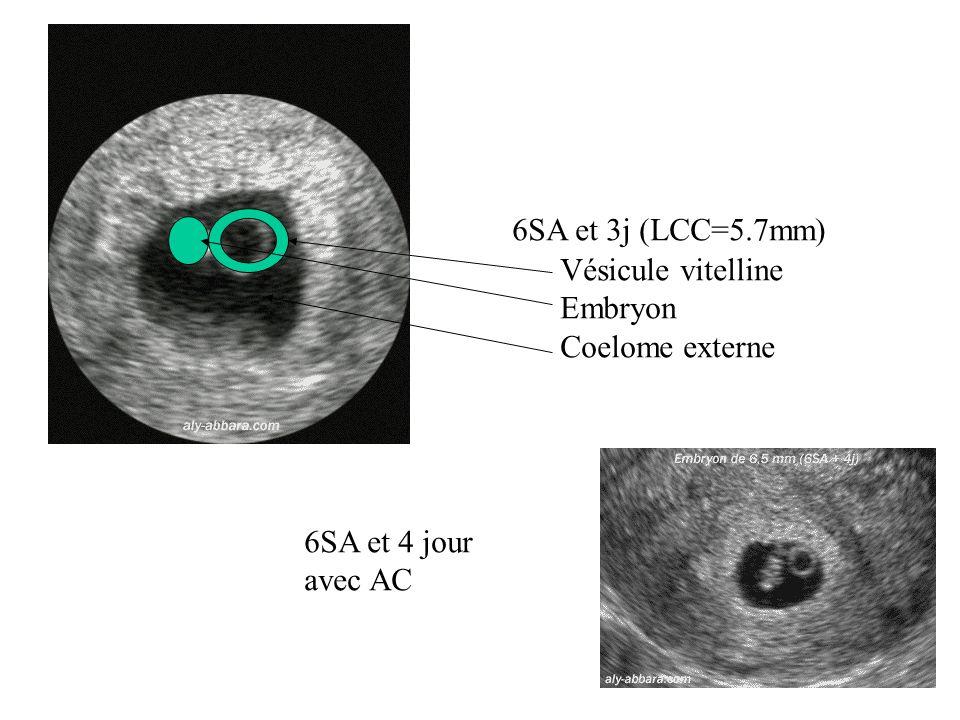 6SA et 3j (LCC=5.7mm) Vésicule vitelline Embryon Coelome externe 6SA et 4 jour avec AC