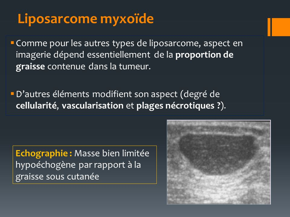 Liposarcome myxoïde