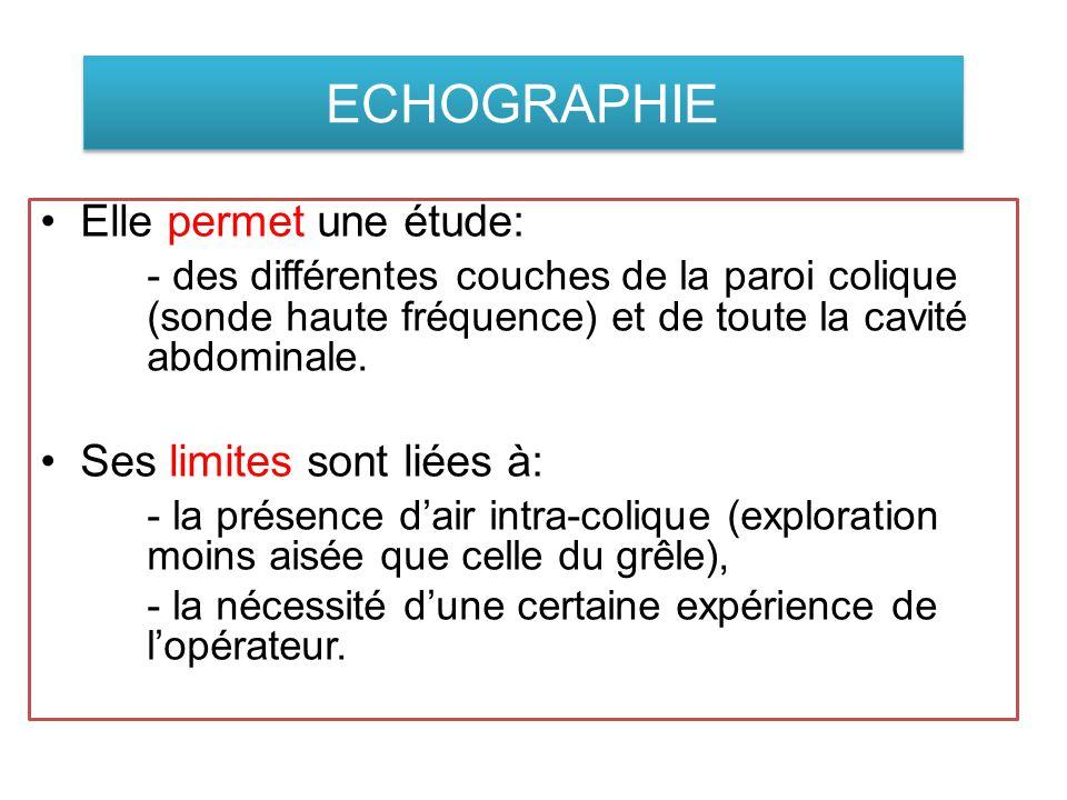 ECHOGRAPHIE Elle permet une étude: