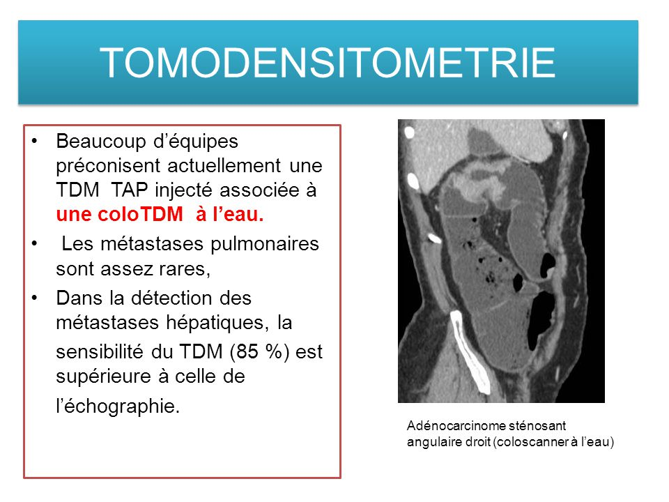 TOMODENSITOMETRIE Beaucoup d'équipes préconisent actuellement une TDM TAP injecté associée à une coloTDM à l'eau.