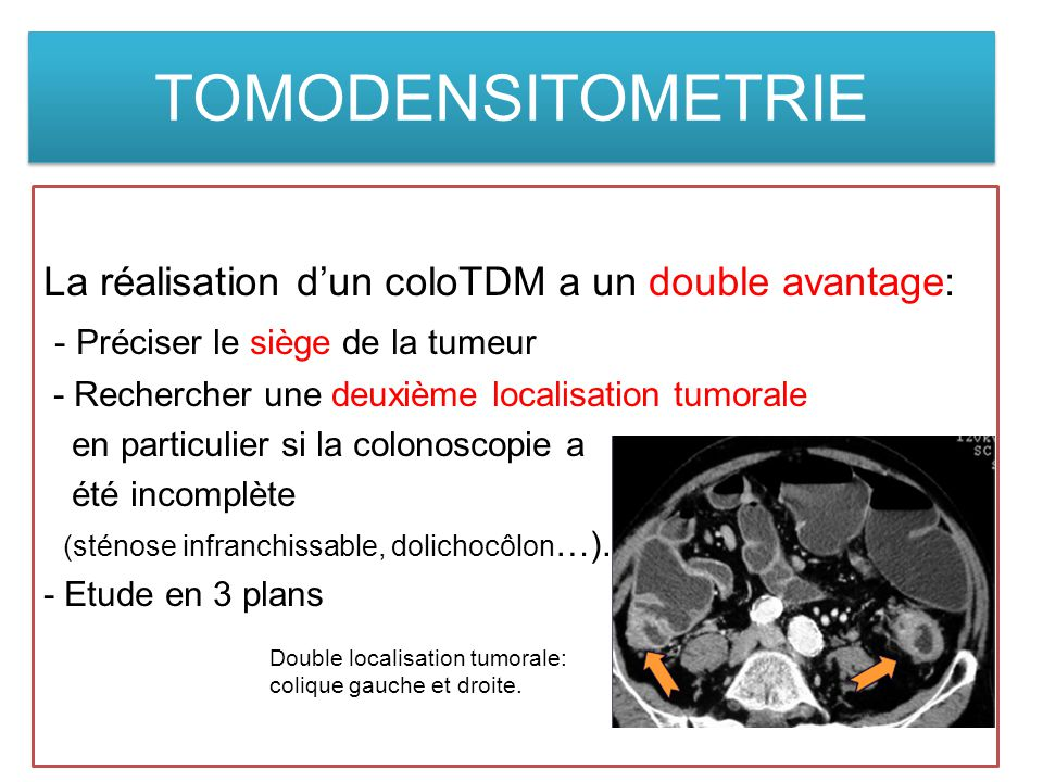 TOMODENSITOMETRIE La réalisation d'un coloTDM a un double avantage:
