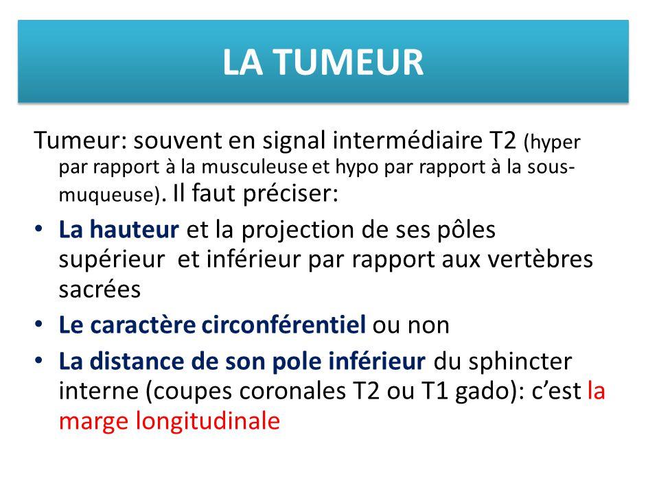 LA TUMEUR Tumeur: souvent en signal intermédiaire T2 (hyper par rapport à la musculeuse et hypo par rapport à la sous-muqueuse). Il faut préciser: