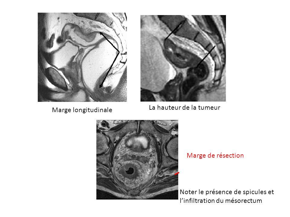 La hauteur de la tumeur Marge longitudinale. Marge de résection.