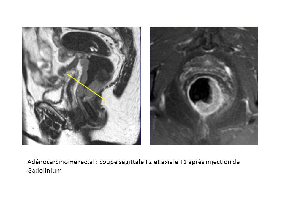 Adénocarcinome rectal : coupe sagittale T2 et axiale T1 après injection de Gadolinium
