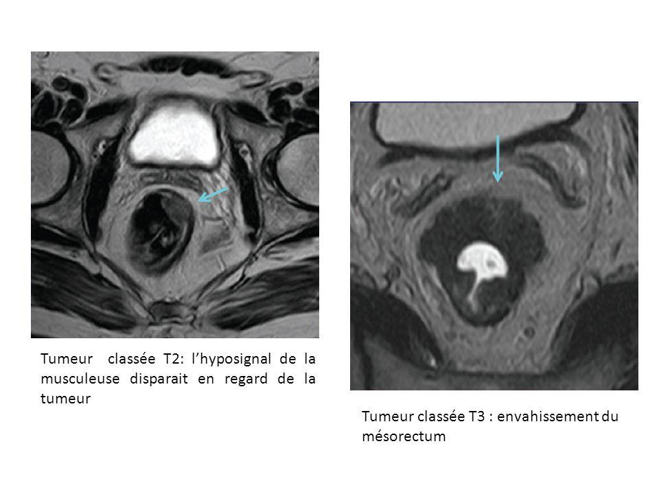 Tumeur classée T2: l'hyposignal de la musculeuse disparait en regard de la tumeur