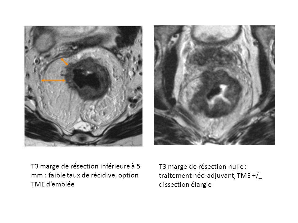 T3 marge de résection inférieure à 5 mm : faible taux de récidive, option TME d'emblée