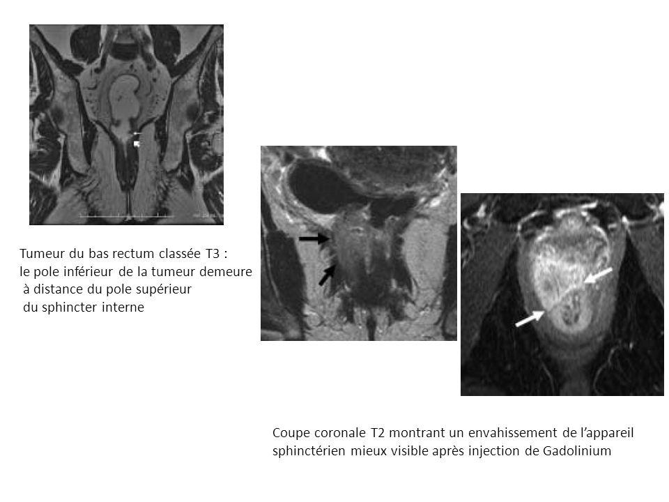 Tumeur du bas rectum classée T3 :