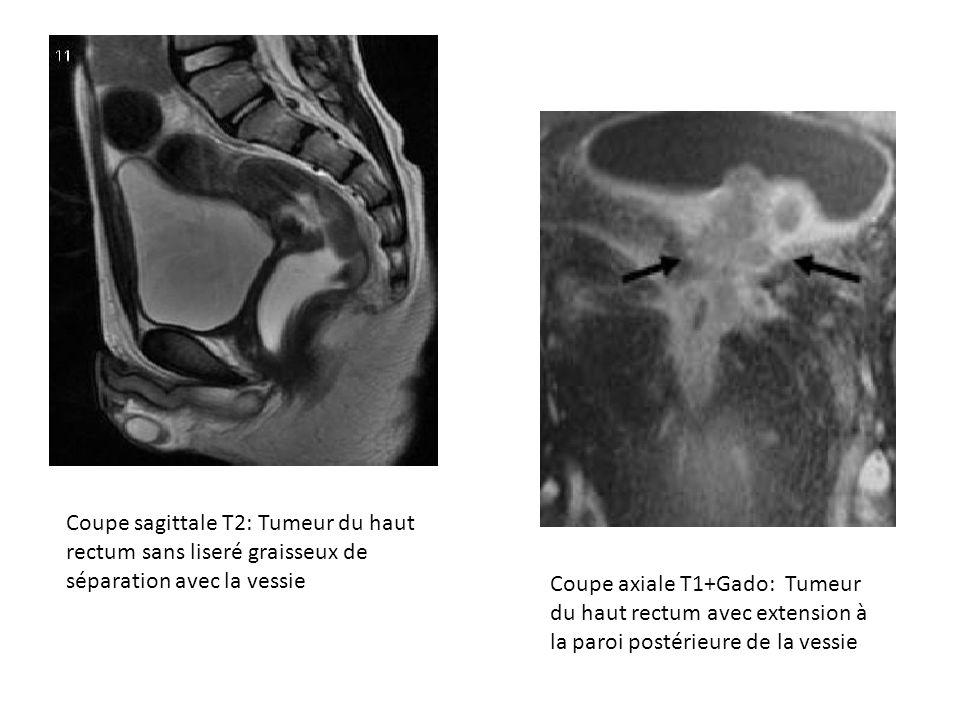 Coupe sagittale T2: Tumeur du haut