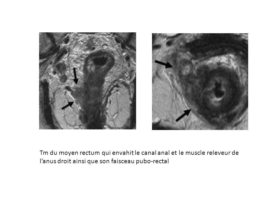 Tm du moyen rectum qui envahit le canal anal et le muscle releveur de l'anus droit ainsi que son faisceau pubo-rectal
