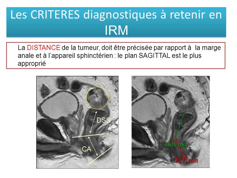 Les CRITERES diagnostiques à retenir en IRM