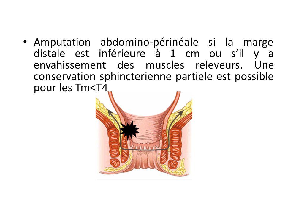 Amputation abdomino-périnéale si la marge distale est inférieure à 1 cm ou s'il y a envahissement des muscles releveurs.