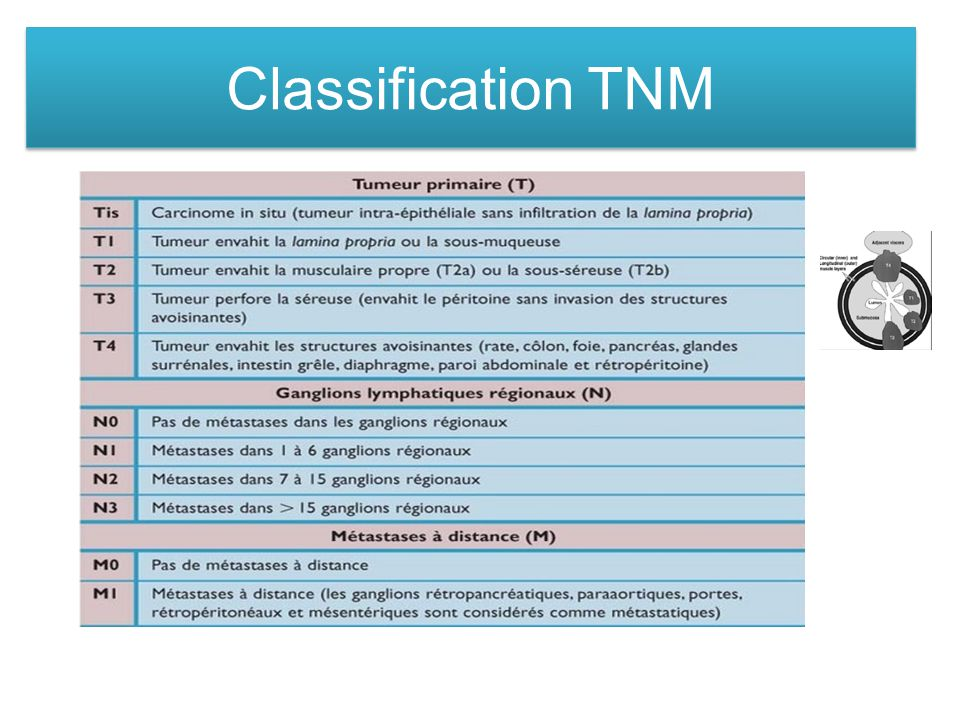 Classification TNM