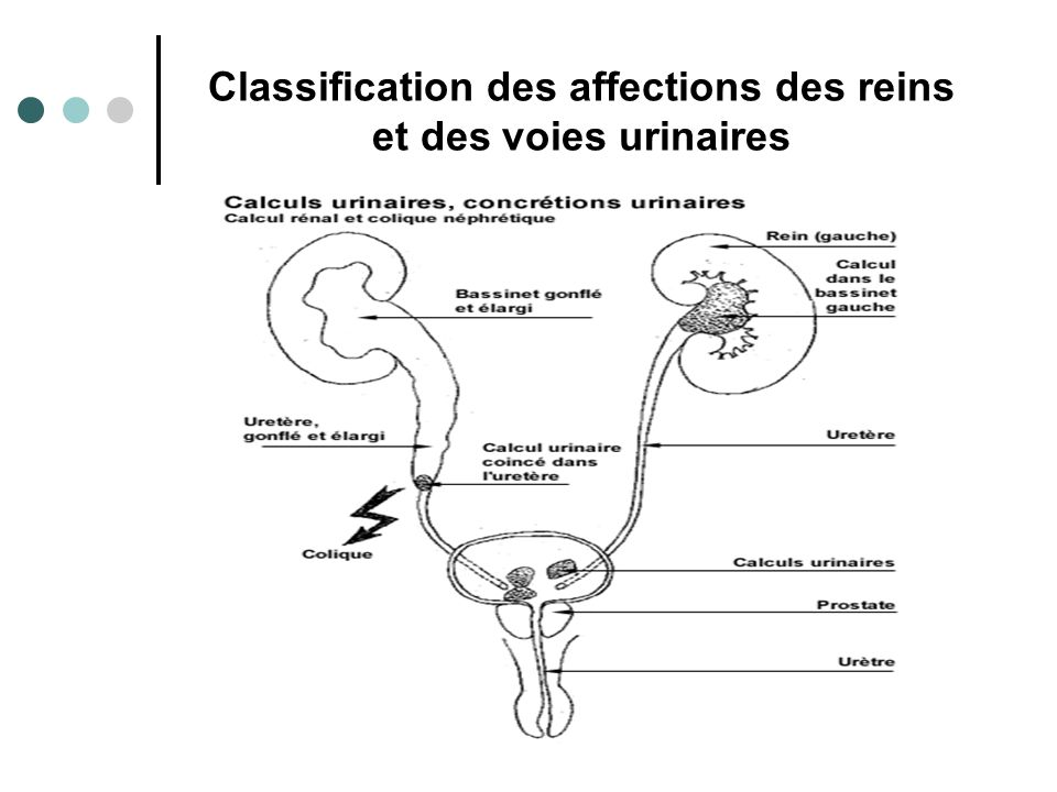 Classification des affections des reins et des voies urinaires