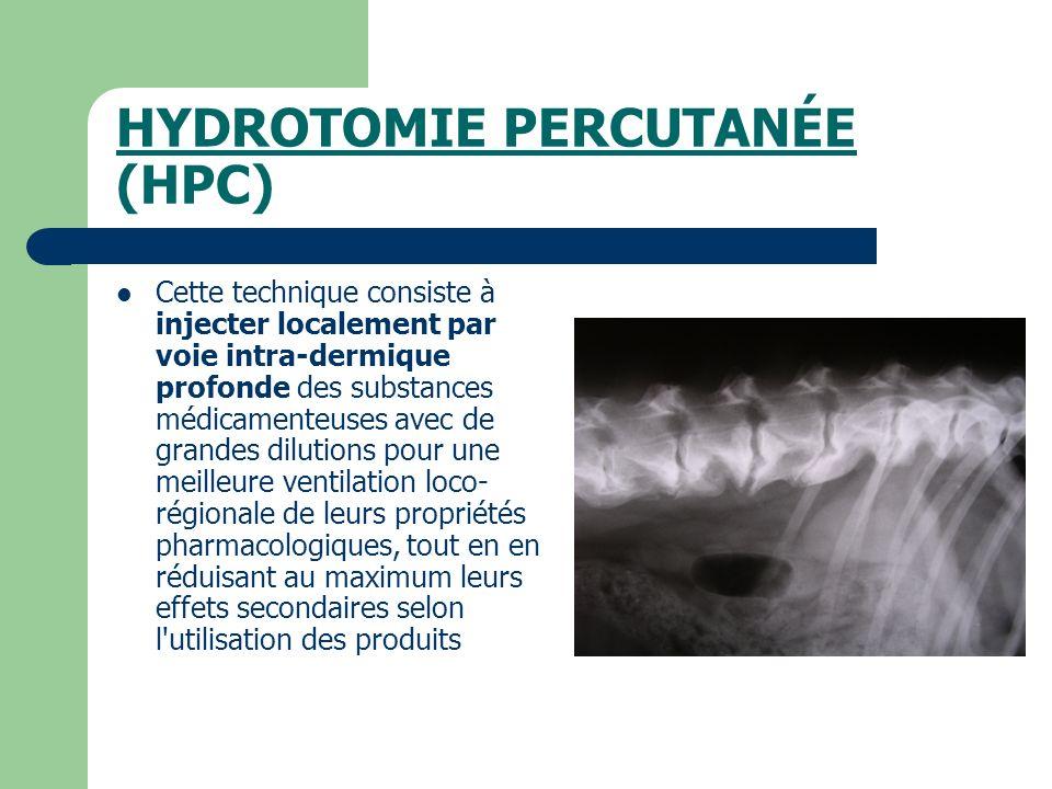 HYDROTOMIE PERCUTANÉE (HPC)
