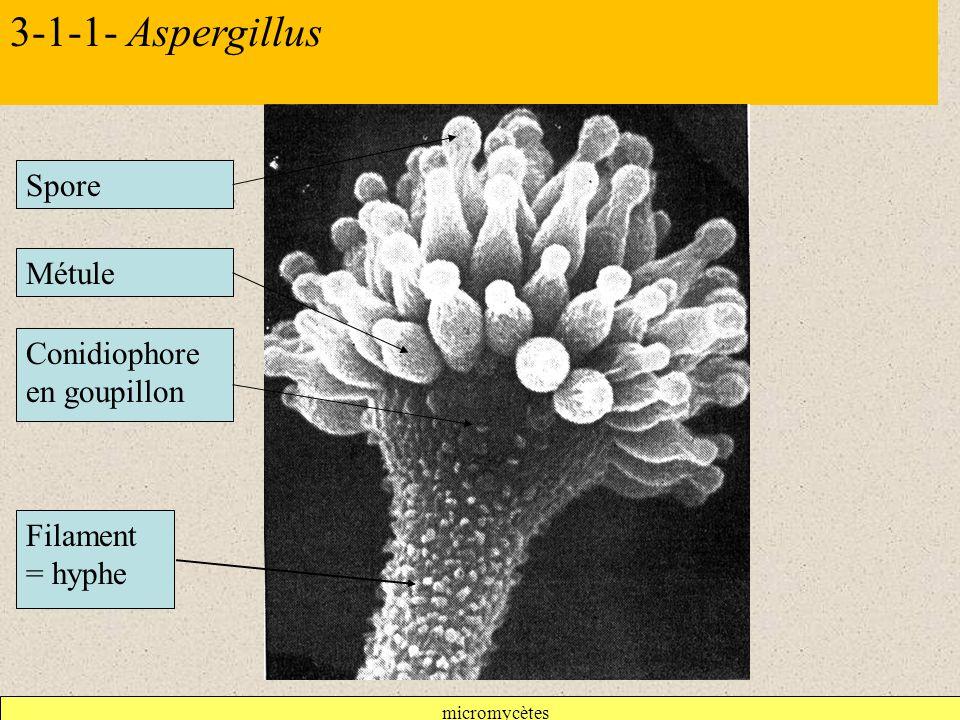 3-1-1- Aspergillus Spore Métule Conidiophore en goupillon
