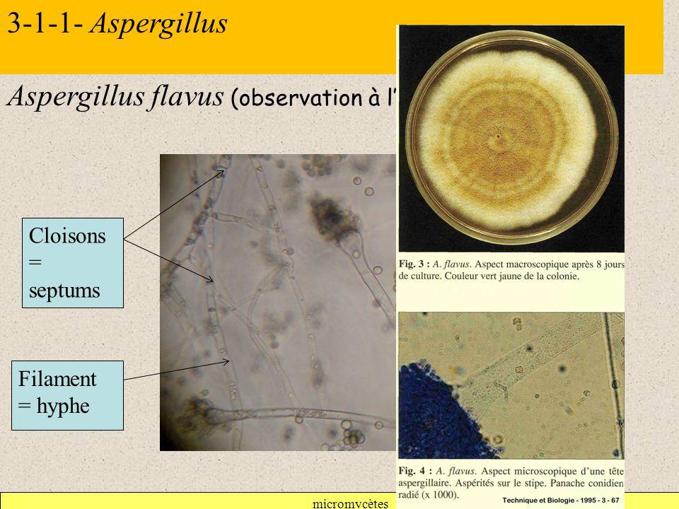 Aspergillus flavus (observation à l'objectif X 40)
