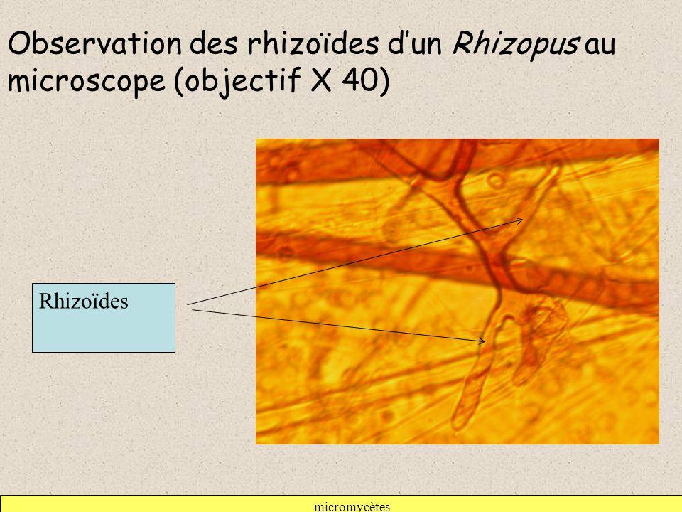 Observation des rhizoïdes d'un Rhizopus au microscope (objectif X 40)