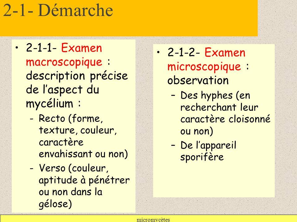 2-1- Démarche 2-1-1- Examen macroscopique : description précise de l'aspect du mycélium :