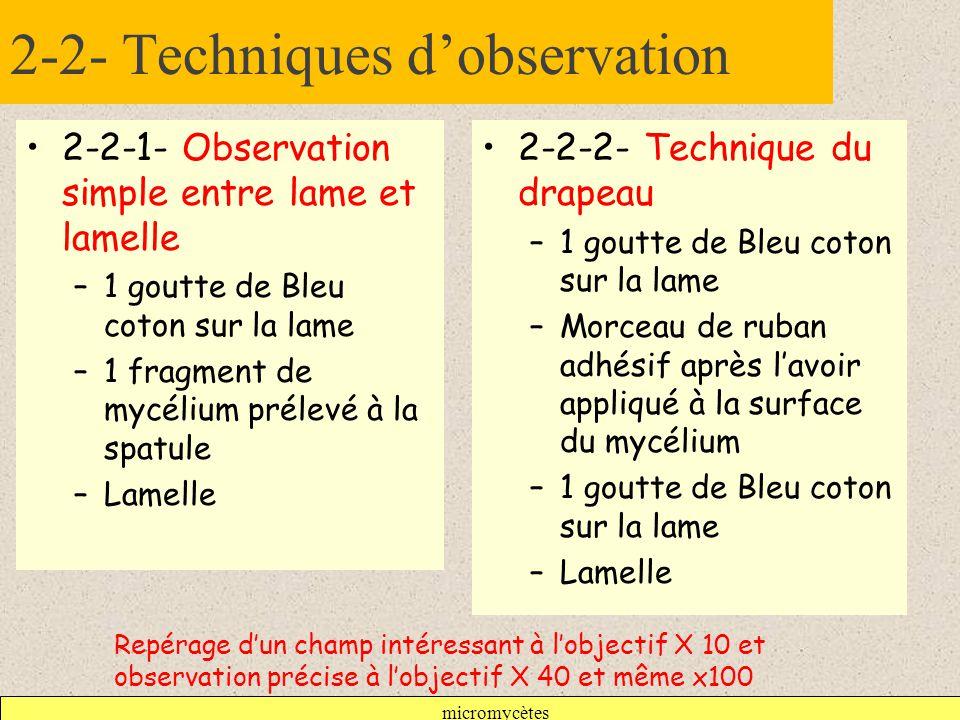 2-2- Techniques d'observation
