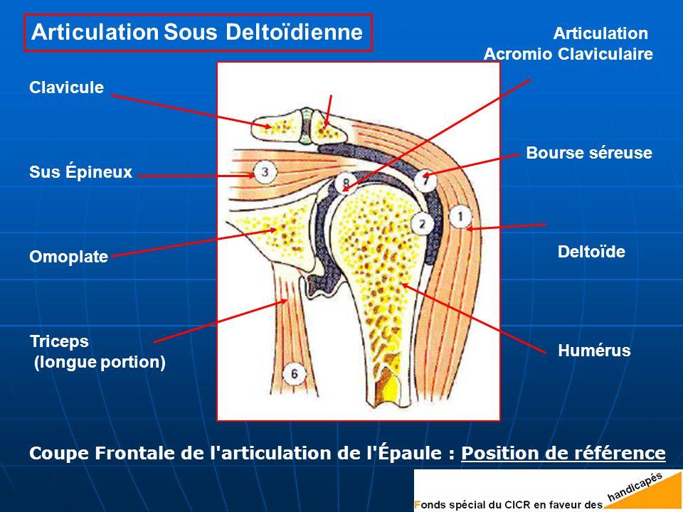 Articulation Sous Deltoïdienne
