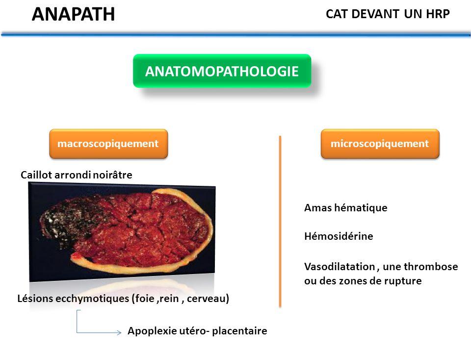 ANAPATH ANATOMOPATHOLOGIE CAT DEVANT UN HRP macroscopiquement