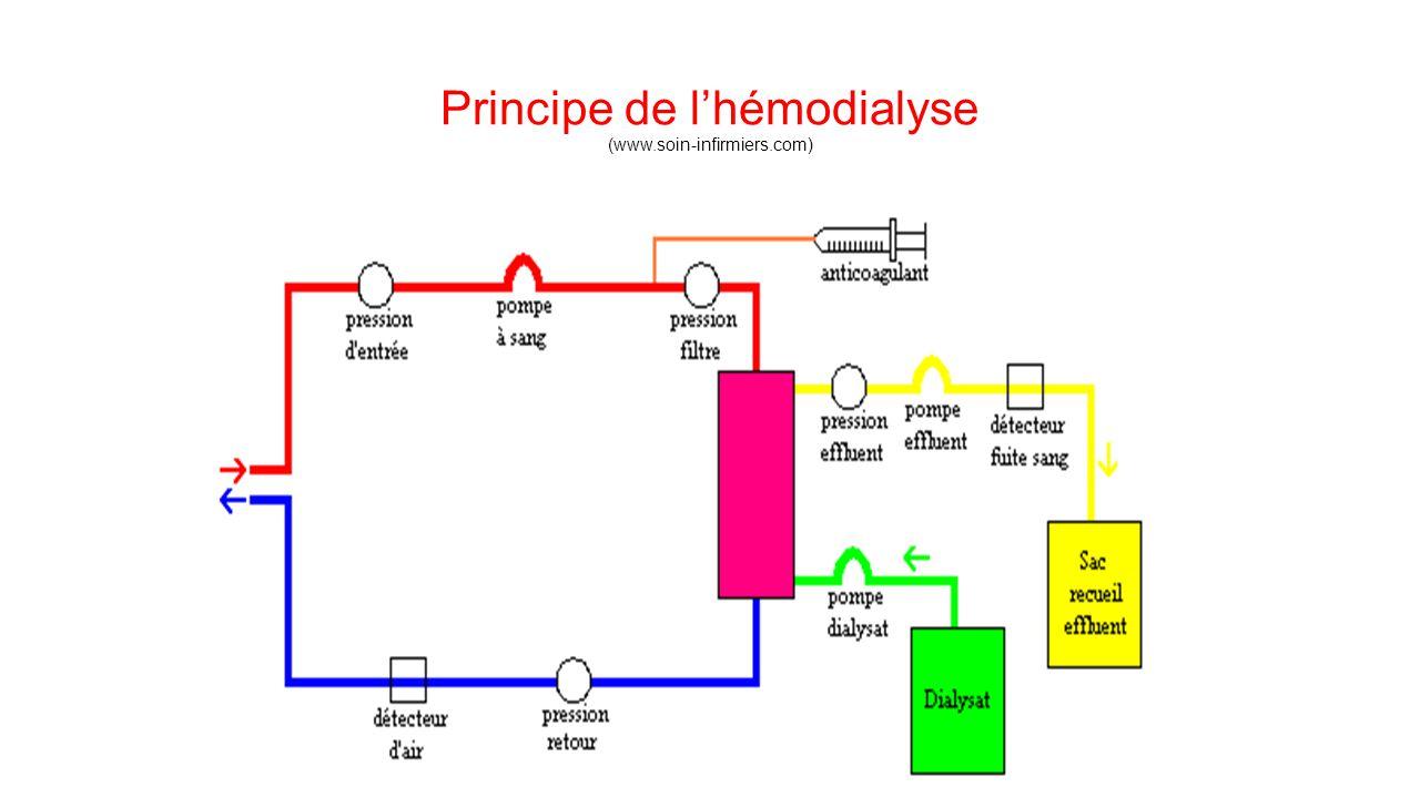 Principe de l'hémodialyse (www.soin-infirmiers.com)
