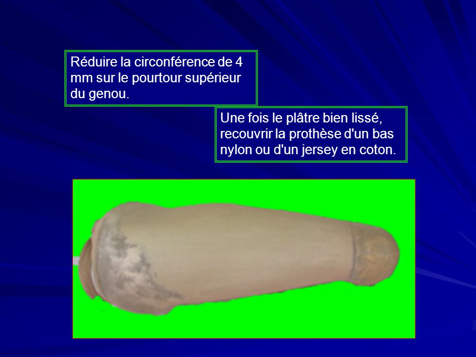 Réduire la circonférence de 4 mm sur le pourtour supérieur du genou.