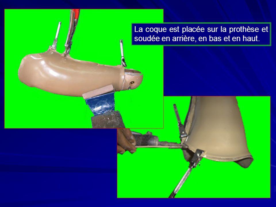 La coque est placée sur la prothèse et soudée en arrière, en bas et en haut.