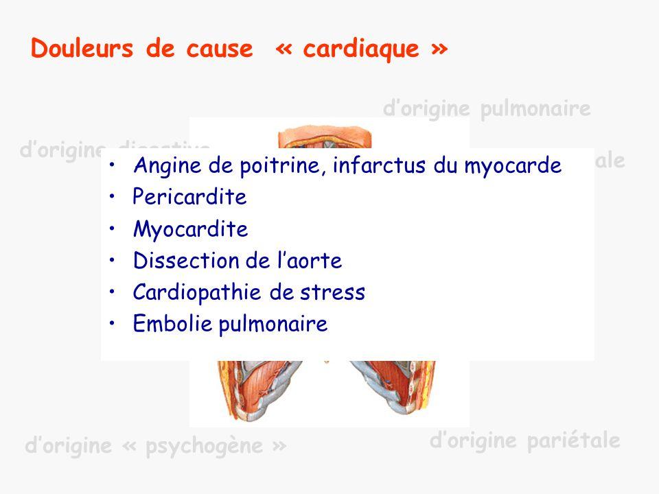 Infarctus du myocarde : symptômes et physiopathologie de