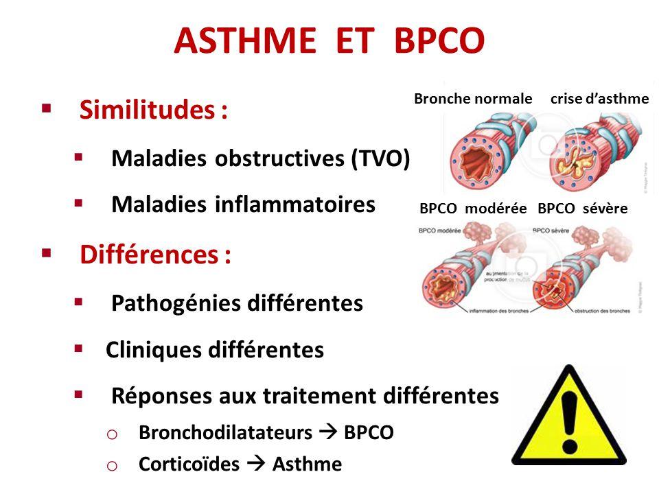 asthme et bpco o se situe la fronti re ppt video online t l charger. Black Bedroom Furniture Sets. Home Design Ideas