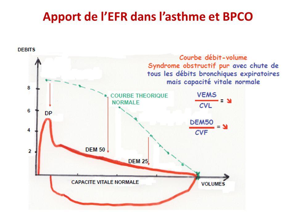 asthme et bpco o u00f9 se situe la fronti u00e8re