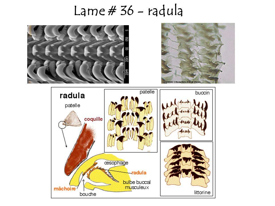 Lame # 36 - radula