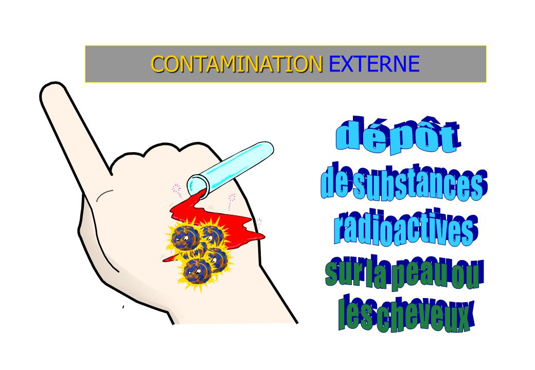 CONTAMINATION EXTERNE