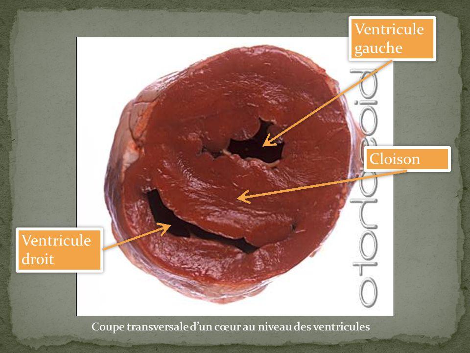 Ventricule gauche Cloison Ventricule droit