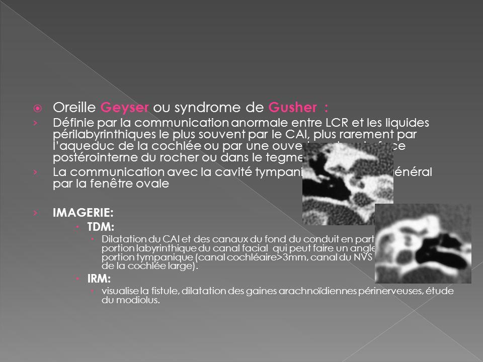 Malformations de l oreille a propos de 5 cas ppt video for Fenetre ovale oreille
