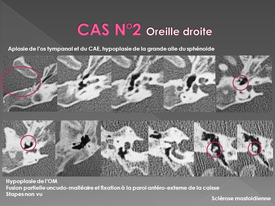Malformations De L Oreille A Propos De 5 Cas Ppt Video