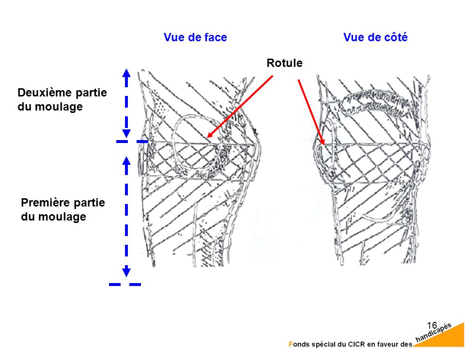 Vue de face Vue de côté Rotule Deuxième partie du moulage Première partie du moulage