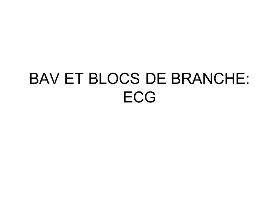 BAV ET BLOCS DE BRANCHE: ECG
