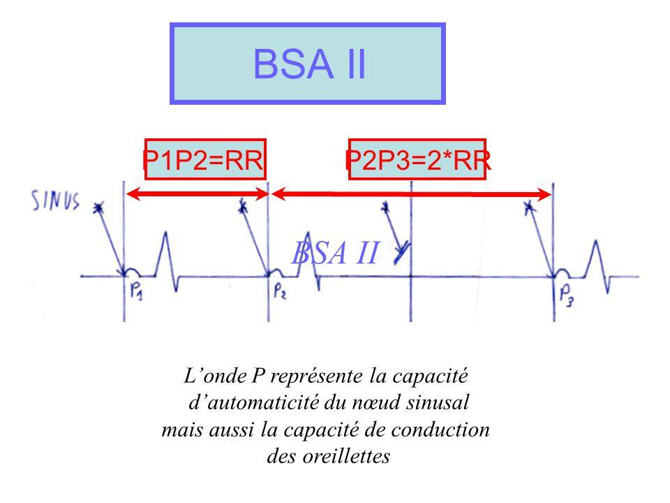 BSA II BSA II P1P2=RR P2P3=2*RR L'onde P représente la capacité