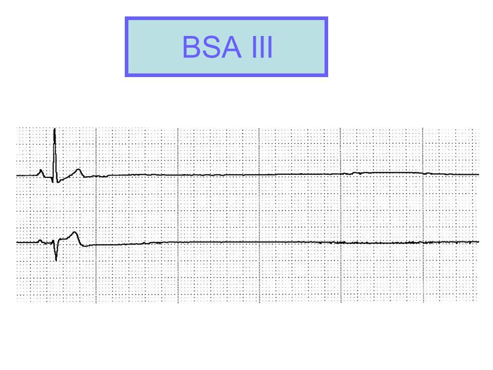 BSA III BSA II